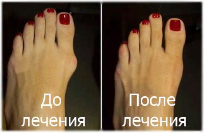 Лечение вальгусной деформации первого пальца стопы (шишка на ноге)!